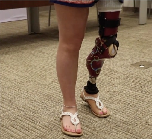 Innovative Surgery Restores 12-Year-Old's Ability To Dance
